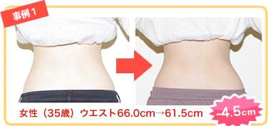 たった10分でくびれ復活!腰痛のエキスパートが伝授する「ゆらゆら筋肉ほぐしダイエット」本の購入キャンペーン開催